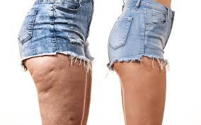 Beine mit Cellulite